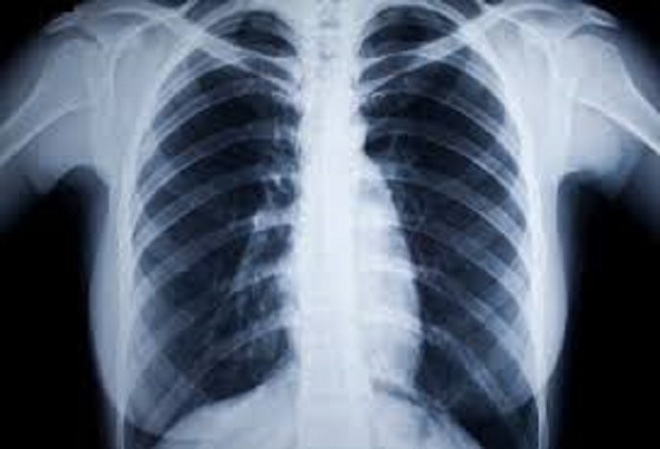 Ảnh chụp X-quang lồng ngực cung cấp nhiều thông tin về bệnh trạng của người bệnh