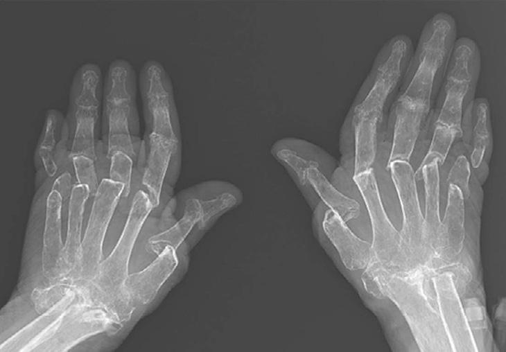 Phim X-Quang giúp quan sát tình trạng xương tổn thương