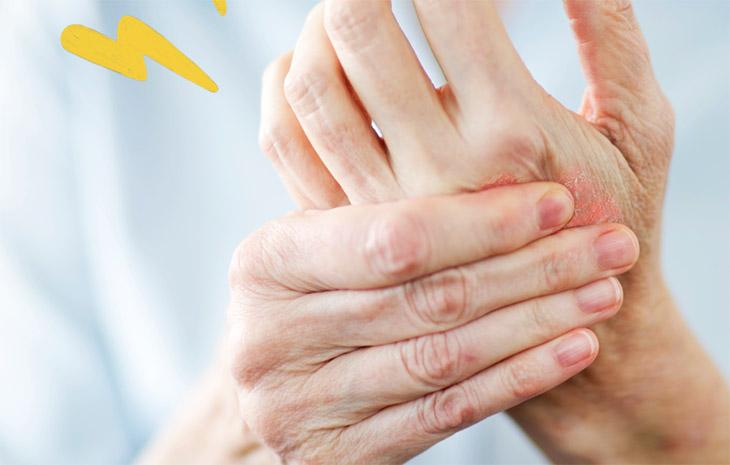 Viêm khớp vảy nến tên tiếng anh là Psoriasis Arthritis – PsA