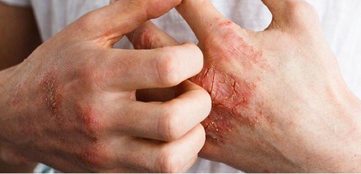 Viêm khớp vảy nến gây rất nhiều khó chịu cho người bệnh