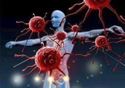 Viêm thận lupus là biến chứng thứ phát do tự miễn