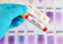 Chỉ số PSA trong ung thư tiền liệt tuyến