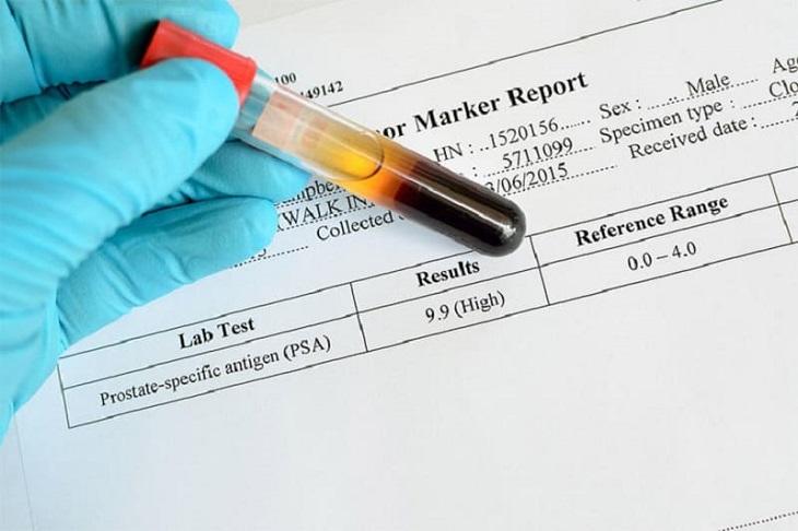 Xét nghiệm PSA trong ung thư tiền liệt tuyến giúp cảnh báo mức độ nguy hiểm