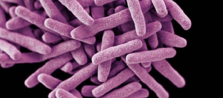 Trực khuẩn lao là một trong những nguyên nhân gây ra bệnh lý suy vỏ thượng thận
