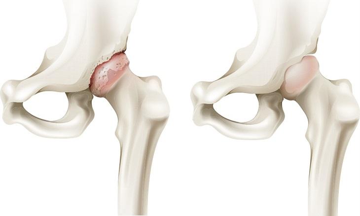 Ảnh minh họa khớp háng bình thường (bên phải) và khớp háng bị viêm (bên trái)