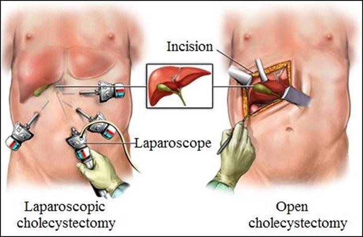 Cắt túi mật nội soi là phương pháp được ứng dụng nhiều nhất hiện nay (bên trái)