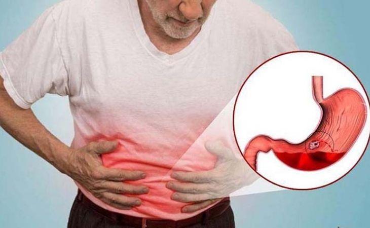 Đau dạ dày trong đêm kéo dài tiềm ẩn nhiều nguy hiểm cho sức khỏe