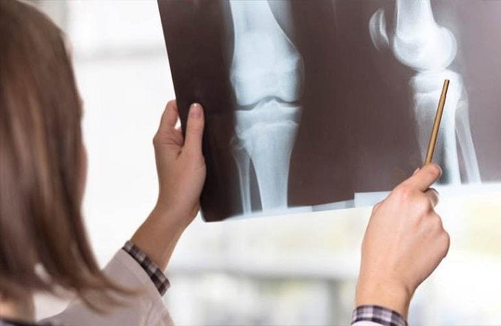 Hình ảnh chụp x quang tại khớp gối