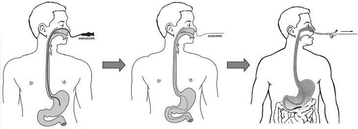 Nội soi dạ dày bằng cách gây tê và đưa qua mũi