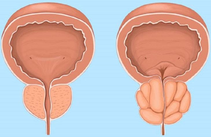 Phì đại tiền liệt tuyến là bệnh lý thường gặp ở nam giới