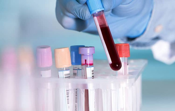 Xét nghiệm máu để kiểm tra lượng Cholesterol trong cơ thể