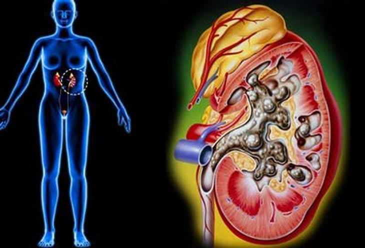 Sức khỏe người bệnh ngày càng nguy hiểm và cần có can thiệp của Tây y