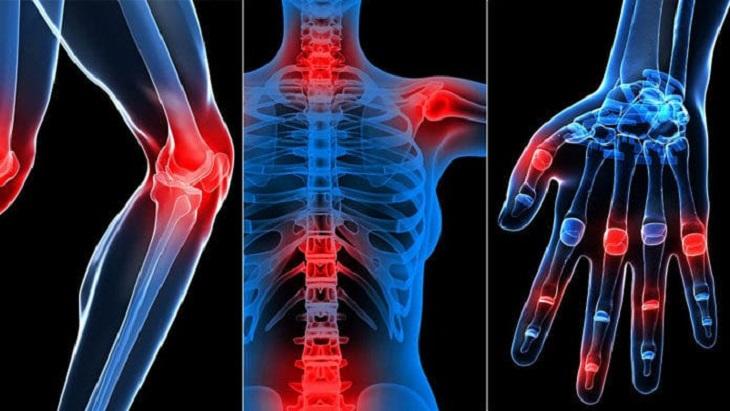 Đau nhức xương khớp ở mọi lứa tuổi