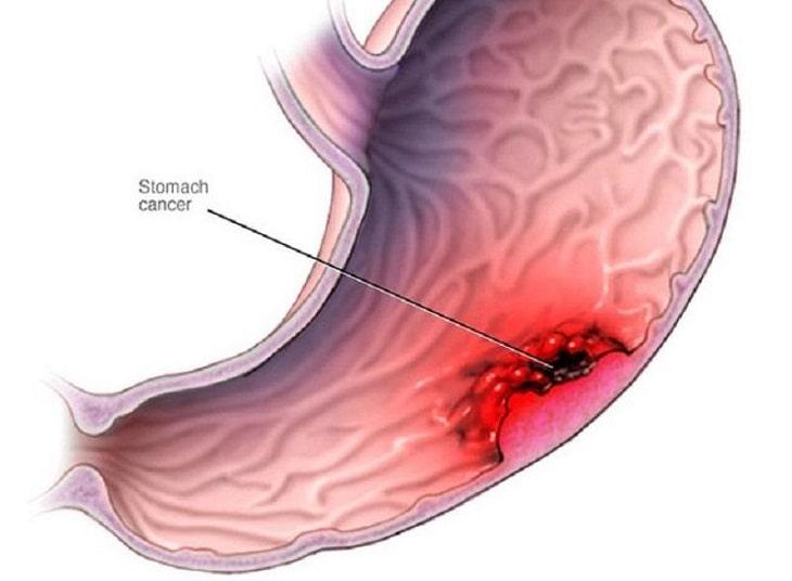 Bệnh tiến triển theo 5 giai đoạn và có cấp độ tăng từ nhẹ đến nặng