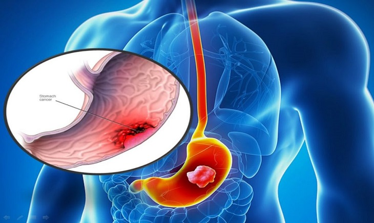 Bệnh viêm dạ dày tiếng anh là gì và những thông tin chi tiết