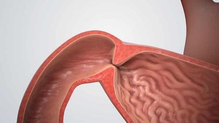Biến chứng hẹp môn vị dạ dày tương đối nguy hiểm