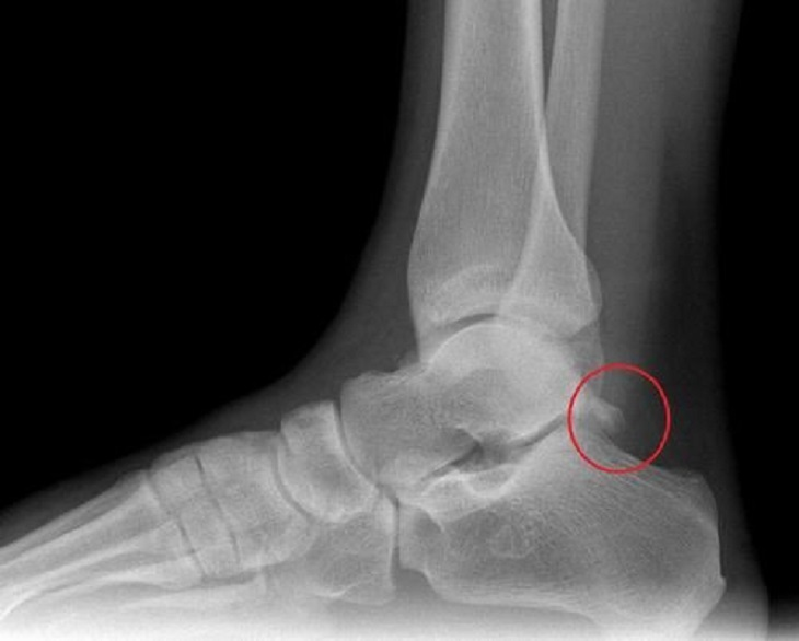 Chụp X-quang thường được yêu cầu khi có thương tổn liên quan đến xương khớp