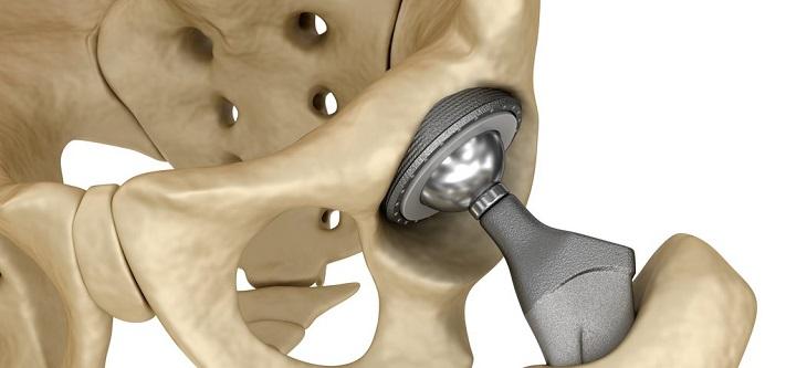 Thay khớp nhân tạo bằng kim loại giúp người bệnh quay trở lại cuộc sống bình thường