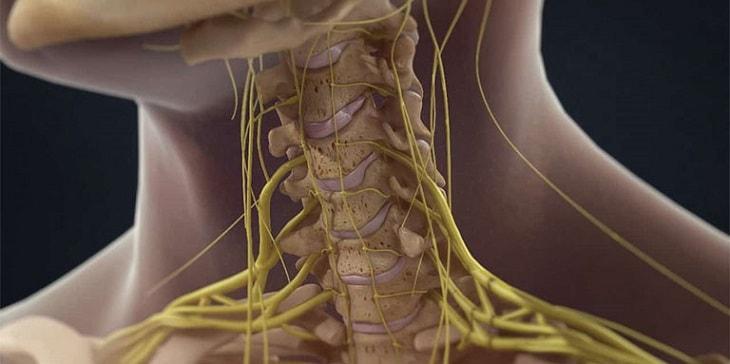 Bệnh viêm khớp chèn ép thần kinh