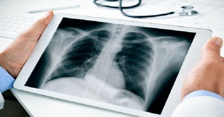 Hình ảnh chụp x quang