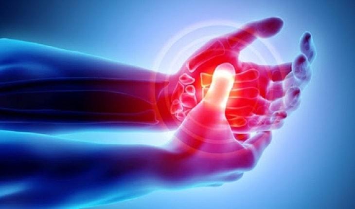 Viêm khớp ngón tay cái là tình trạng nhiều người mắc phải