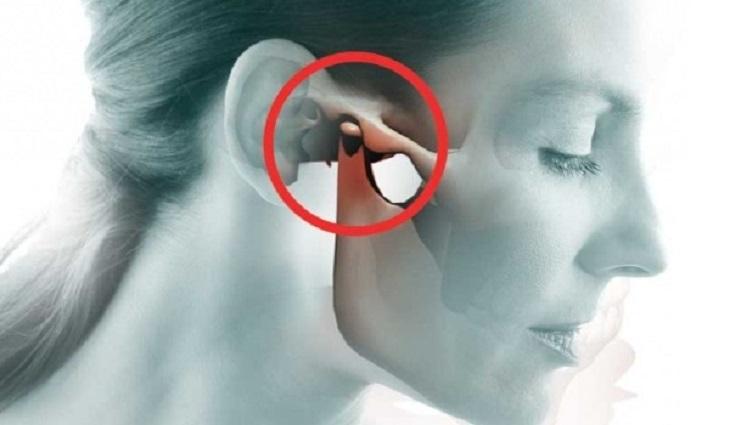 Viêm khớp thái dương hàm là bệnh lý nhiều người mắc hiện nay