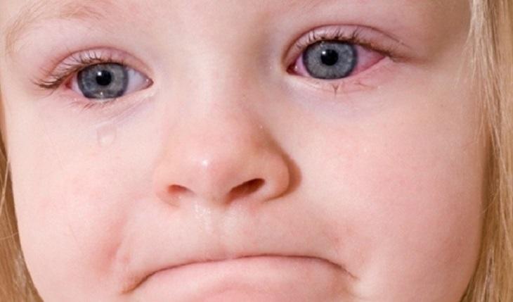 Trẻ bị viêm màng bồ đào do viêm khớp thường chảy nước mắt, sợ ánh sáng...