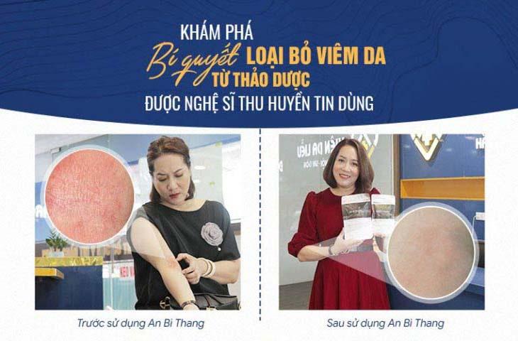 Hình ảnh trước và sau điều trị của diễn viên Thu Huyền