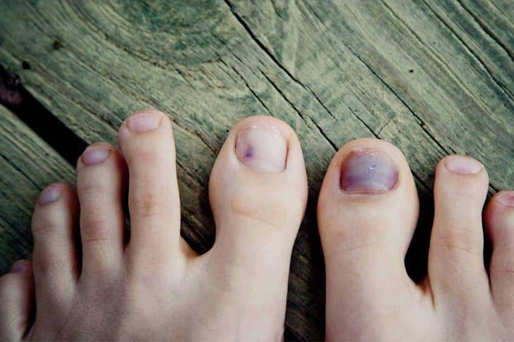 Biến dạng móng là một trong những biến chứng khi bị chàm ở chân