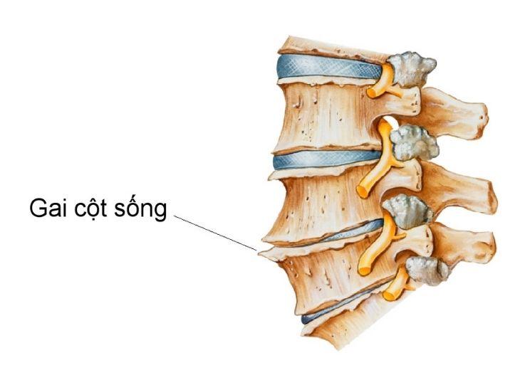 Gai cột sống là biến chứng của bệnh thoái hóa đốt sống L5 S1