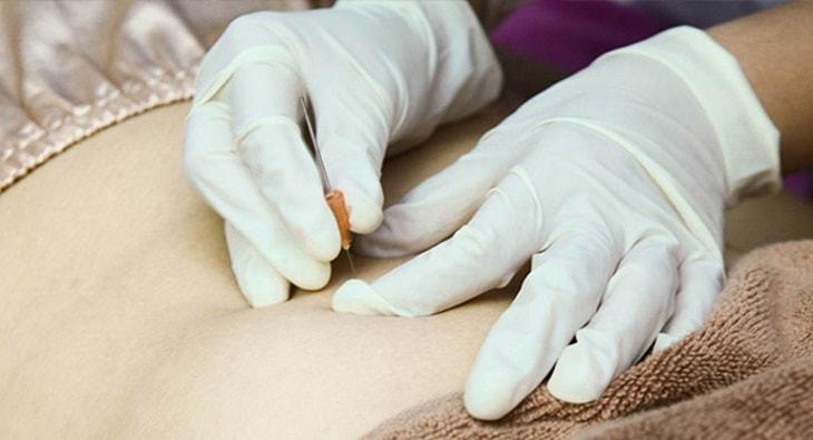 Cấy chỉ chữa thoát vị đĩa đệm là một phương pháp Đông y được áp dụng cho một số người