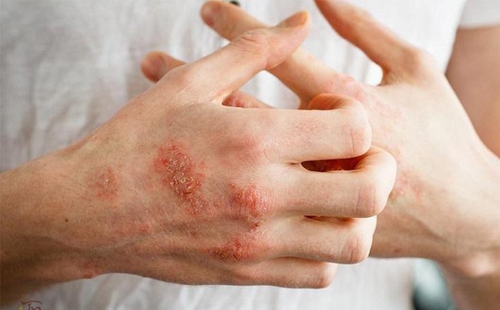 Chàm hóa là bệnh da liễu phổ biến bất kỳ ai cũng có thể bị