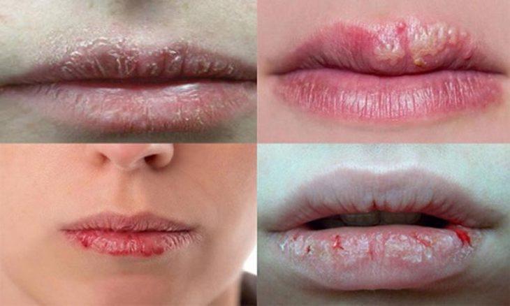 Bệnh chàm môi là gì và có những loại chàm môi nào bạn cần lưu ý?