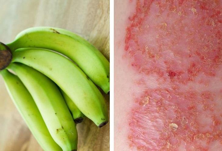 Vì sao chuối xanh được dùng để chữa bệnh chàm?