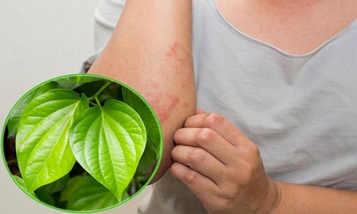 Đắp lá trầu không lên da để giảm nhanh cơn ngứa