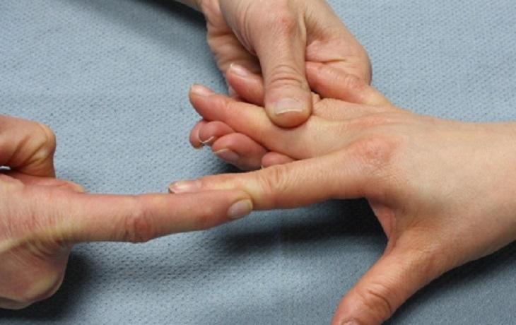 Để chẩn đoán bệnh, bác sĩ sẽ kiểm tra khả năng vận động các khớp tay