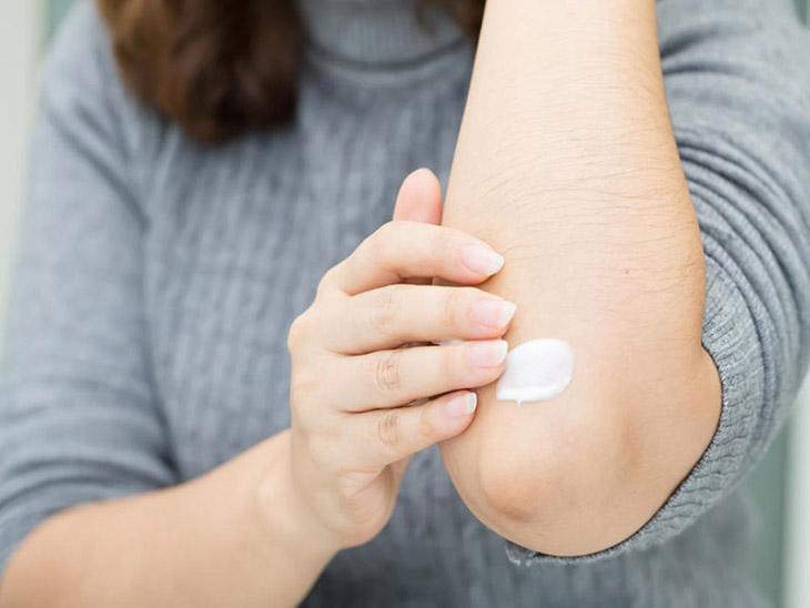 Các loại thuốc bôi có tác dụng làm dịu da, làm giảm triệu chứng dị ứng