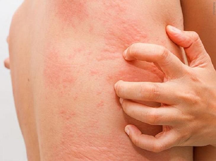 Triệu chứng thường gặp của mề đay mãn tính là ngứa ngáy và phát ban