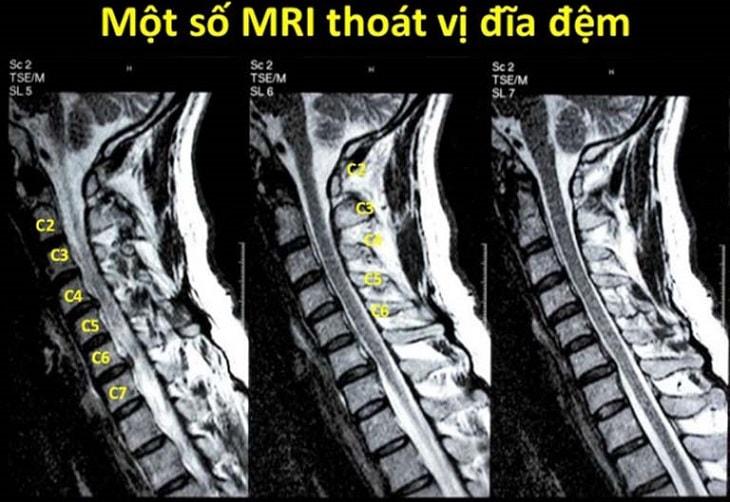 Cách đọc MRI thoát vị đĩa đệm được soạn thảo theo quy trình của bộ y tế