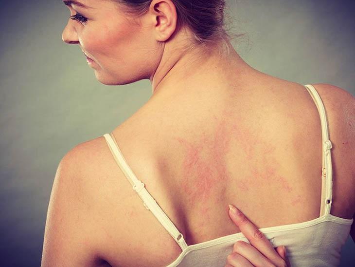 Vệ sinh cơ thể không sạch có thể gây nổi mề đay ở lưng