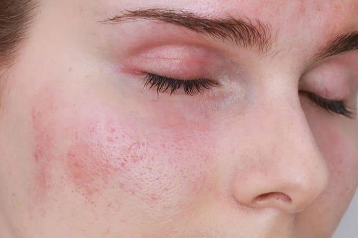 Nổi mề đay ở mặt là chứng bệnh phổ biến ở phụ nữ