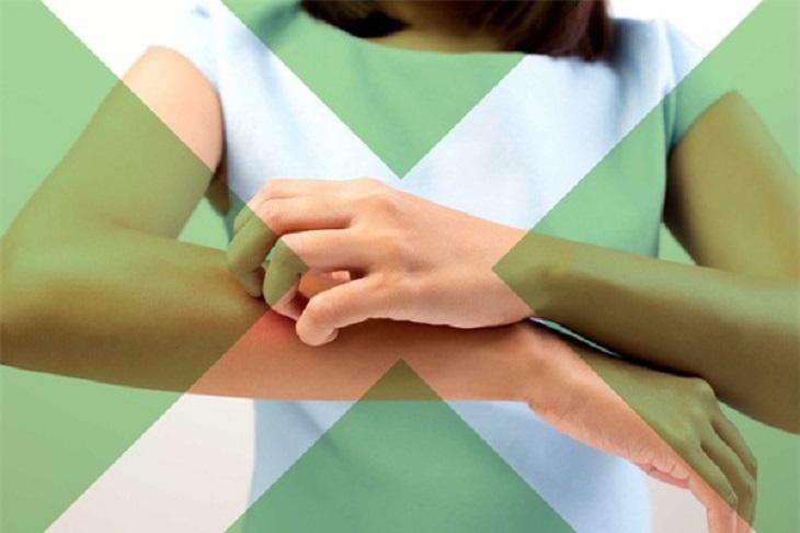 Trong quá trình điều trị bệnh không nên gãi để tránh bệnh chuyển biến nặng