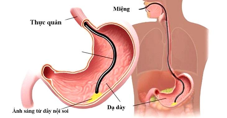 Có nhiều phương pháp hiện đại cho phép khám và chữa bệnh ở trong bao tử
