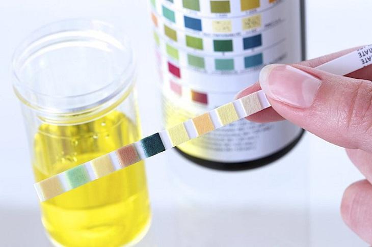 Xét nghiệm nước tiểu là điều kiện cần để kết luận suy thận mạn
