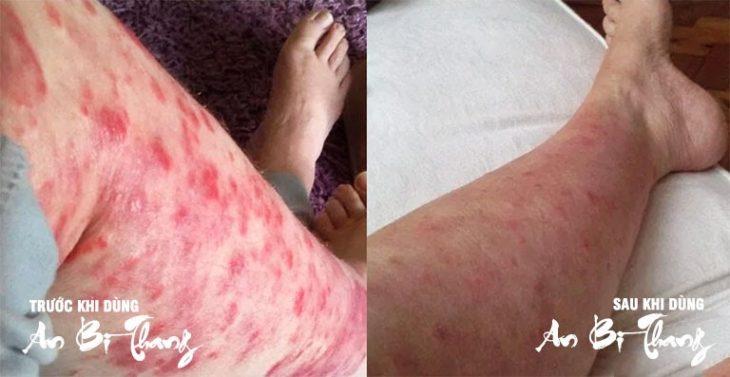 Tình trạng chàm của bác Huỳnh Tiến Thanh đã được cải thiện rõ ràng sau hơn 1 tháng điều trị
