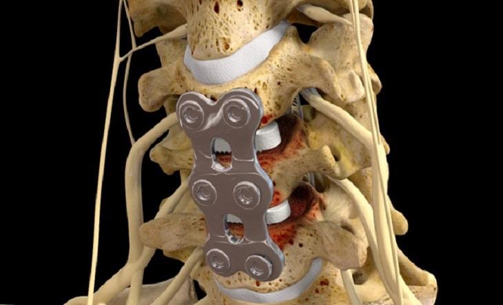 Phẫu thuật thoát vị đĩa đệm cột sống thắt lưng là một trong những phương pháp điều trị hiện nay