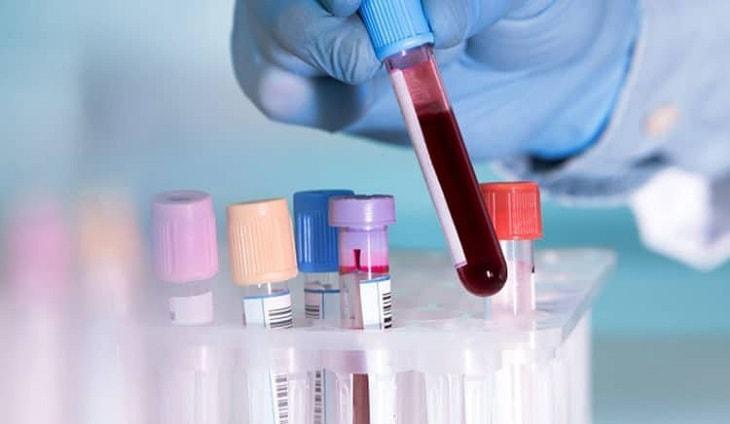 Thực hiện xét nghiệm chỉ số máu để xác định bệnh