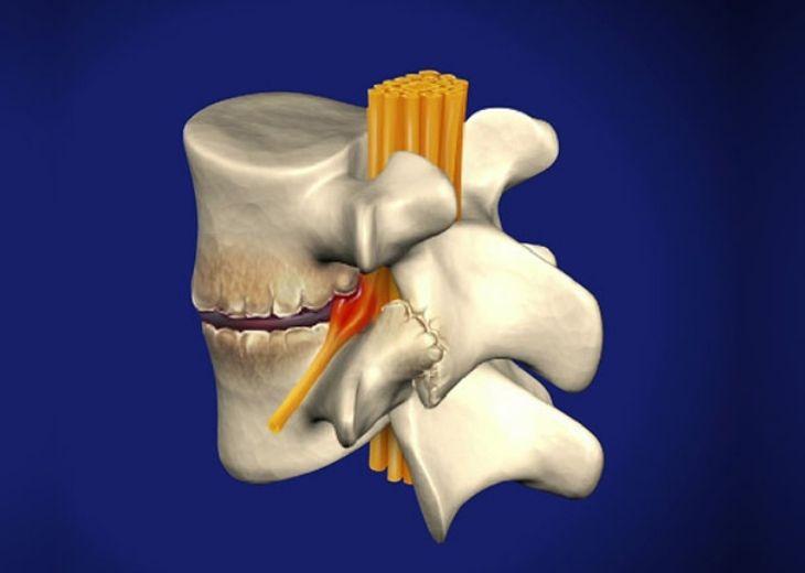 Thoái hóa đốt sống lưng là bệnh lý xương khớp phổ biến và diễn biến theo 4 giai đoạn