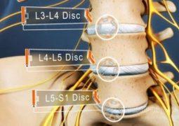 Thoái hóa đốt sống L5 S1 là gì? Dấu hiệu, nguyên nhân và cách điều trị