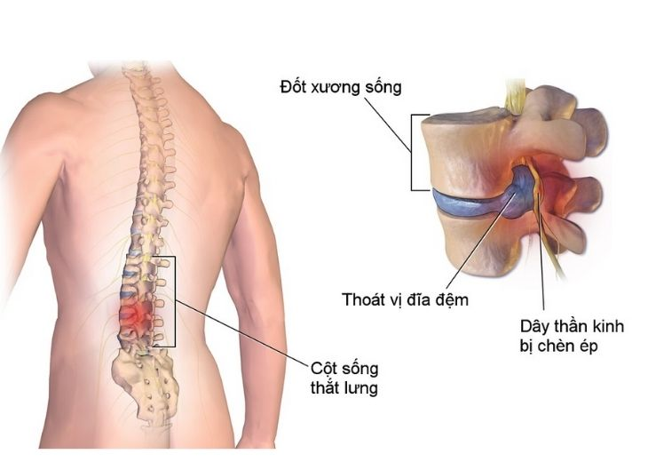 Thoát vị đĩa đệm chèn dây thần kinh là khi nhân nhầy đĩa đệm thoát ra ngoài, lệch khỏi vị trí chèn ép lên dây thần kinh.